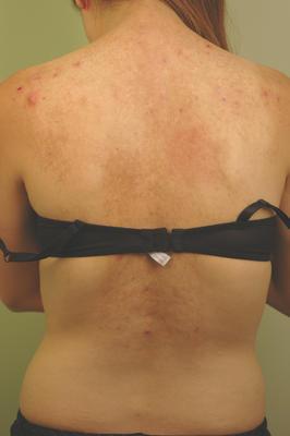 Laser Back Acne Treatment photo from Harold J. Kaplan, MD ...