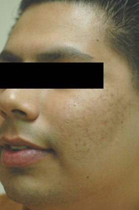 Acne Laser Treatment after 88206