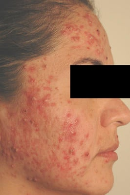 Laser Acne Treatment before 82960