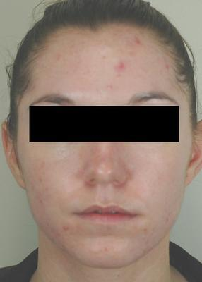 Laser Acne Treatment before 82976
