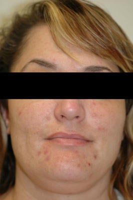Laser Acne Treatment before 82998