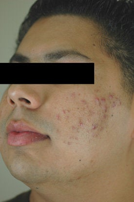Acne Laser Treatment before 88206