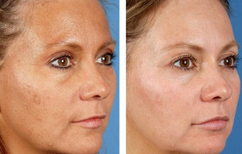 Active FX Fractional Laser Resurfacing before 254009