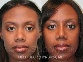 African American Rhinoplasty after 374015