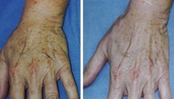 Hand age spot removal by laser treatment before 6327