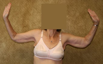 Brachioplasty or arm tuck in los angeles after 583676