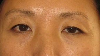 Asian Blepharoplasty to remove eye bags before 80806