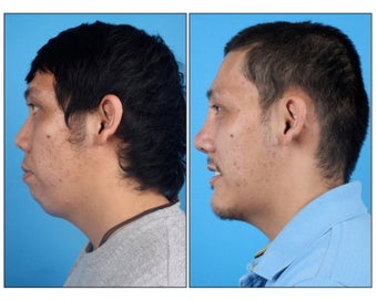 Asian Rhinoplasty and Genioplasty before 331136