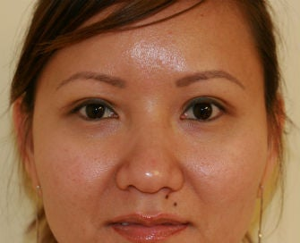 Double Eyelid procedure