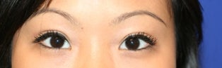 Asian Double Eyelid Surgery after 507305
