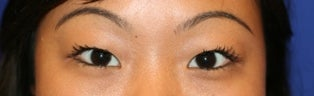 Asian Double Eyelid Surgery before 507305