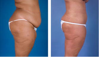 Central body lift with liposuction age 32 after 6814