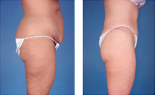 Central body lift with liposuction age 38 after 6816