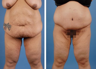 Lower Body Lift and Extended Tummy Tuck before 335991
