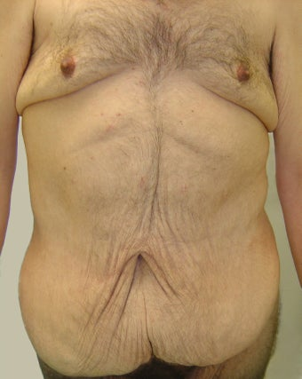 Bodylift & removal of excess chest skin before 527247