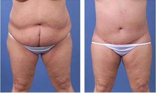 Central body lift with liposuction of thighs and back, age 42 before 6815