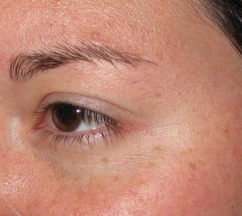Botox Cosmetic for Crow's Feet wrinkles after 127170