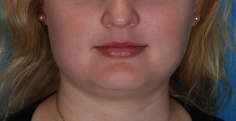 Botox for enlarged jaw muscles after 391015