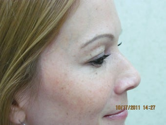 Botox for crow's feet after 399028