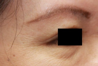 Crow's feet wrinkles after 508940