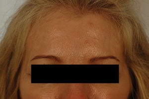 Coreecting Asymmetry with Botox (Dysport Browlift).  after 649422