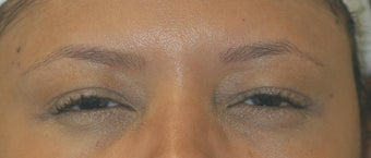 Botox Treatment after 93600