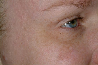Non-surgical eye rejuvenation after 95918