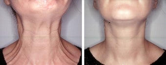 Botox for platysmaplasty  before 123565