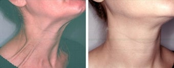 Botox for platysmaplasty before 123566