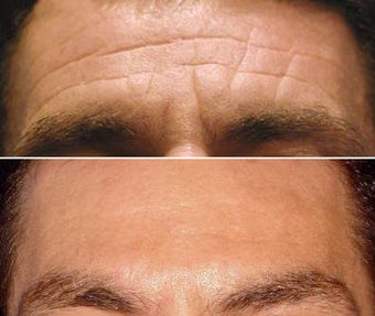 Botox for Men before 124031