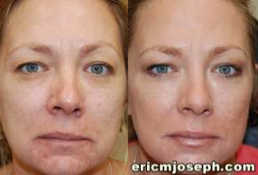 Non-Surgical Facial Rejuvenation with BOTOX Cosmetic and Silikon-1000 before 130990