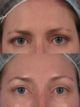 "Botox to glabella and ""crow's lines"" before 174931"