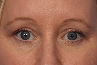 Botox to Crows Feet and Between Eyes (Glabella) before 308334