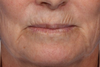 Botox and Juvederm  before 309243