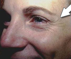Botox Cosmetic - Crow's Feet before 328095