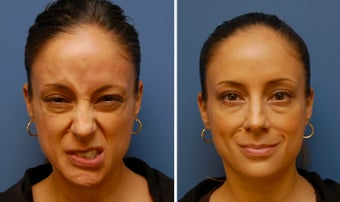 Botox for Synkinesis, Bell's Palsy, Facial Paralysis
