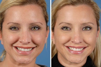 Botox Cosmetic & Restylane before 356613