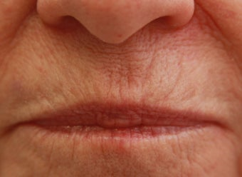 Upper Lip (whistle) lines before 508944