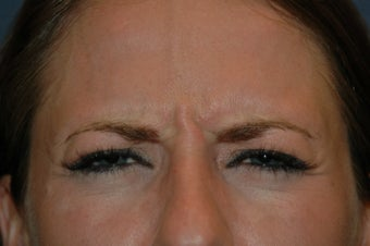 Botox injected in between the eyebrows and into the forehead before 577107