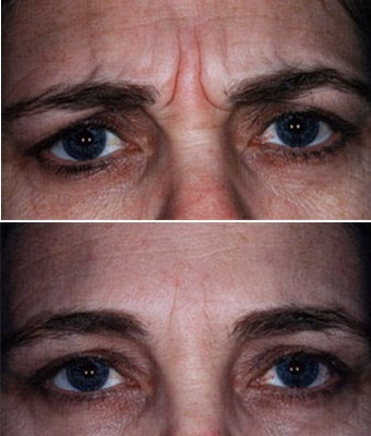 Showing Expression Before and After Botox before 6331