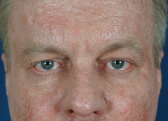 Man in 50's seek non-surgical facial rejuvention before 634493