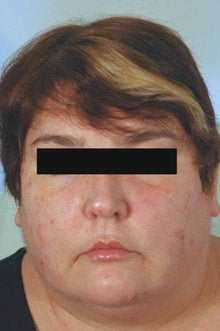 Botox and Restylane for Mouth Frown before 91054