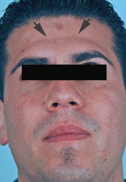 Botox treatment for forehead before 91060