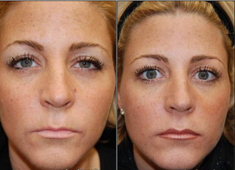 Liquid Face Lift with BOTOX Cosmetic and Silikon-1000