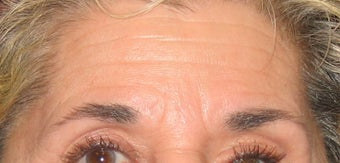 Botox Treatment for Forehead and Brow Wrinkles before 96417