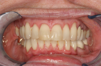 Adult Overbite, Nonextraction (braces)