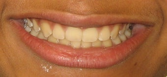 Braces to correct spacing, overbite