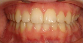 Braces in combination with orthognathic (jaw) surgery after 355264