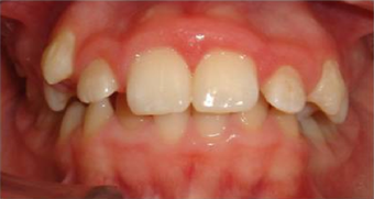 Braces in combination with orthognathic (jaw) surgery before 355264