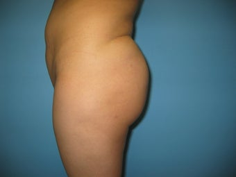 buttock augmentation (Brazilian buttock lift) after 284964